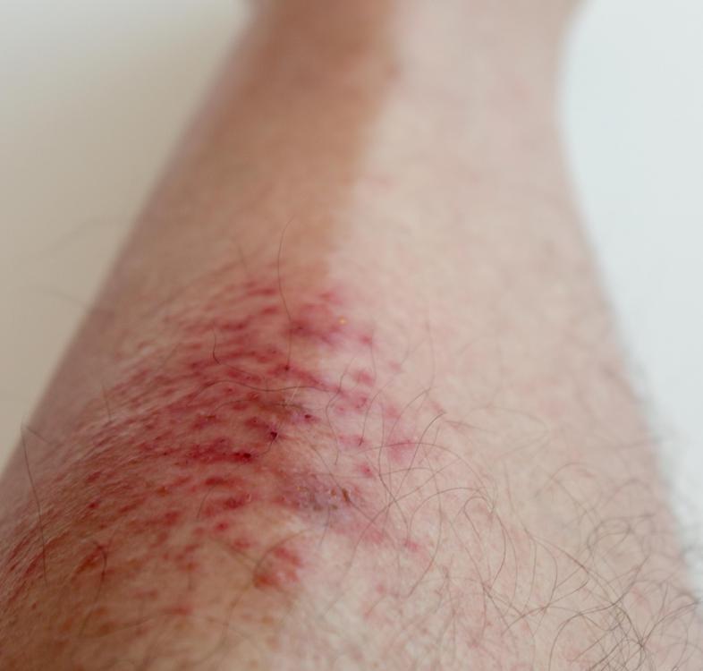 фото аллергии