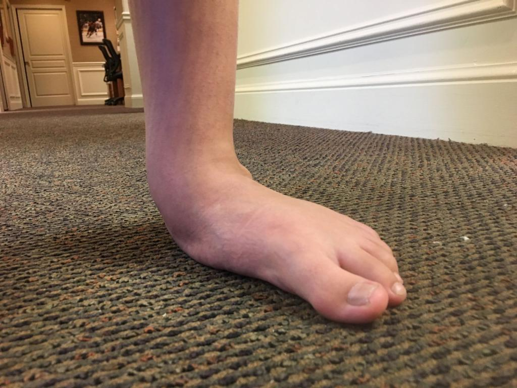 ноги иксом у ребенка 3 года