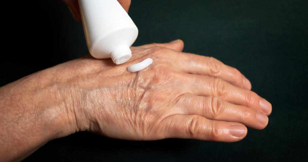 Лечение артрита местными средствами