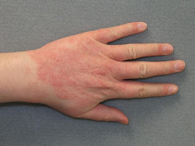 Раздражение на руке