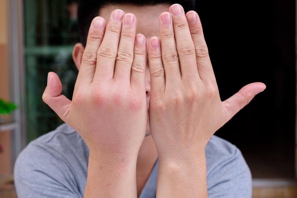 отечность руки