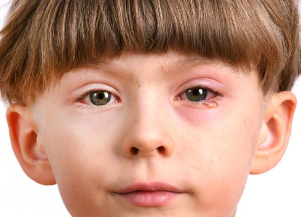 мальчик с конъюнктивитом