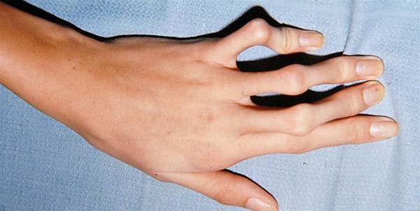 Арахнодактилия у пациента