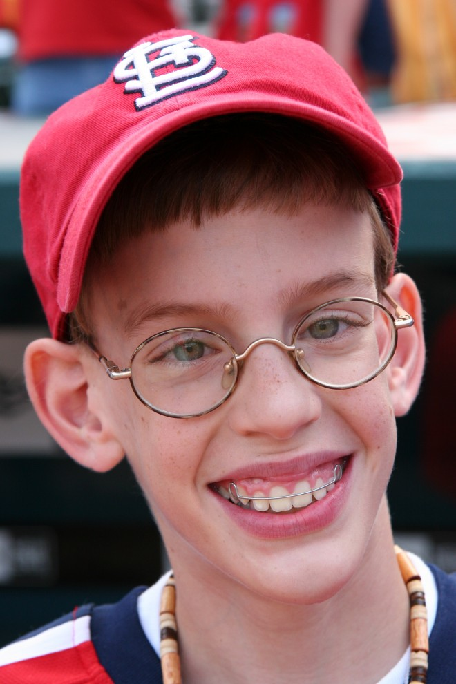Синдром Марфана: ухудшение зрения