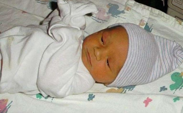 Физиологическая желтуха у новорожденного