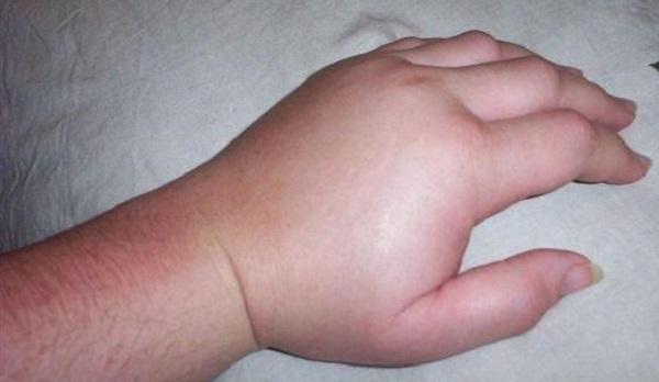 Отек пальцев