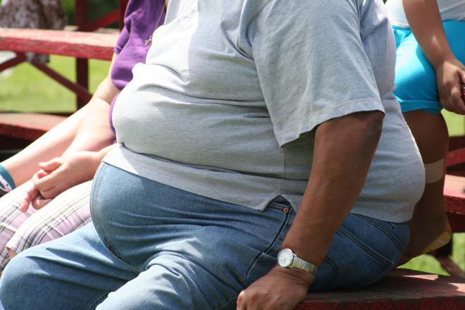 отеки от избыточного веса