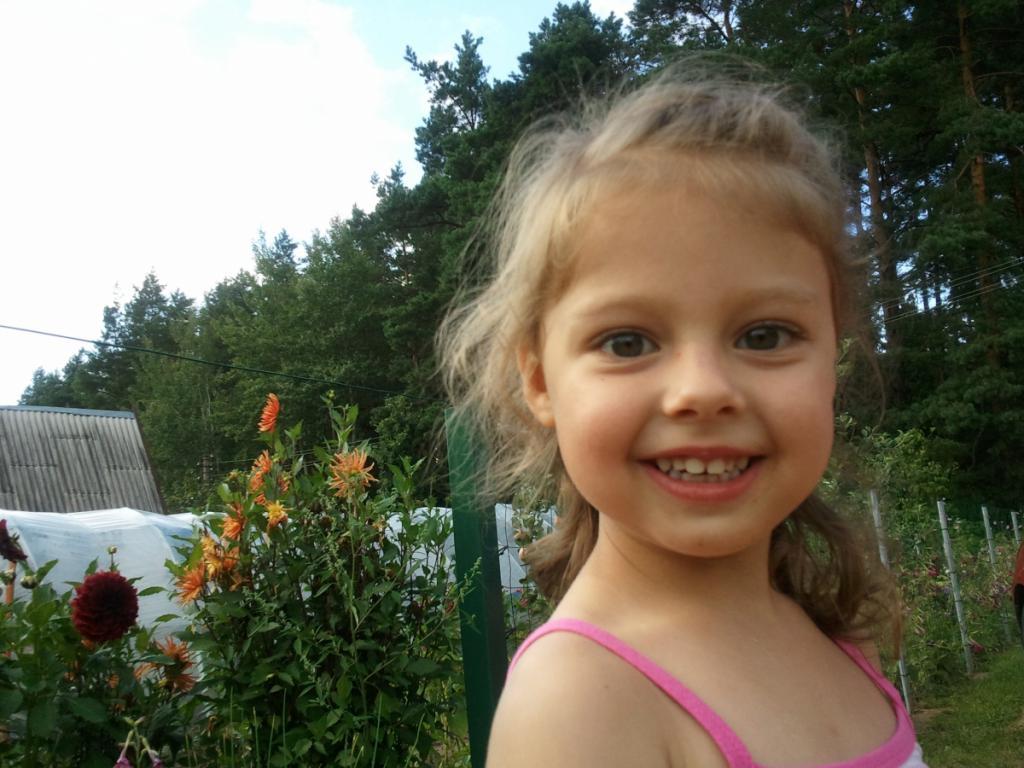 отек лица у ребенка, причины, лечение