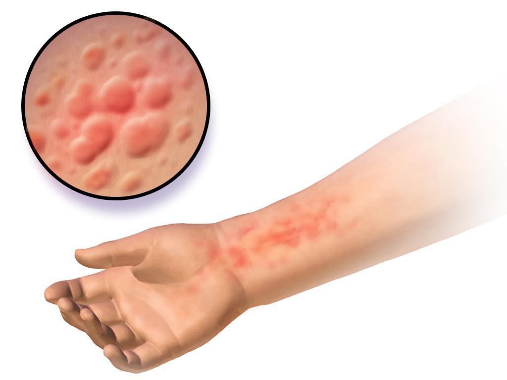аллергия симптомы и лечение