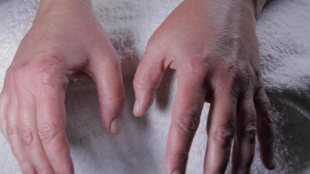 аллергия у ребенка фото симптомы