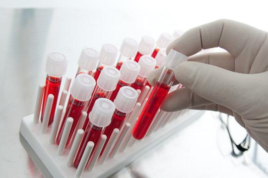 антитела к ядерному антигену вируса эпштейна