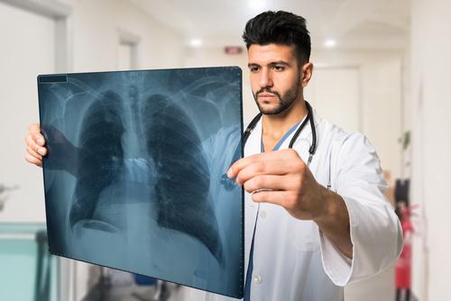 пневмония симптомы у детей отзывы