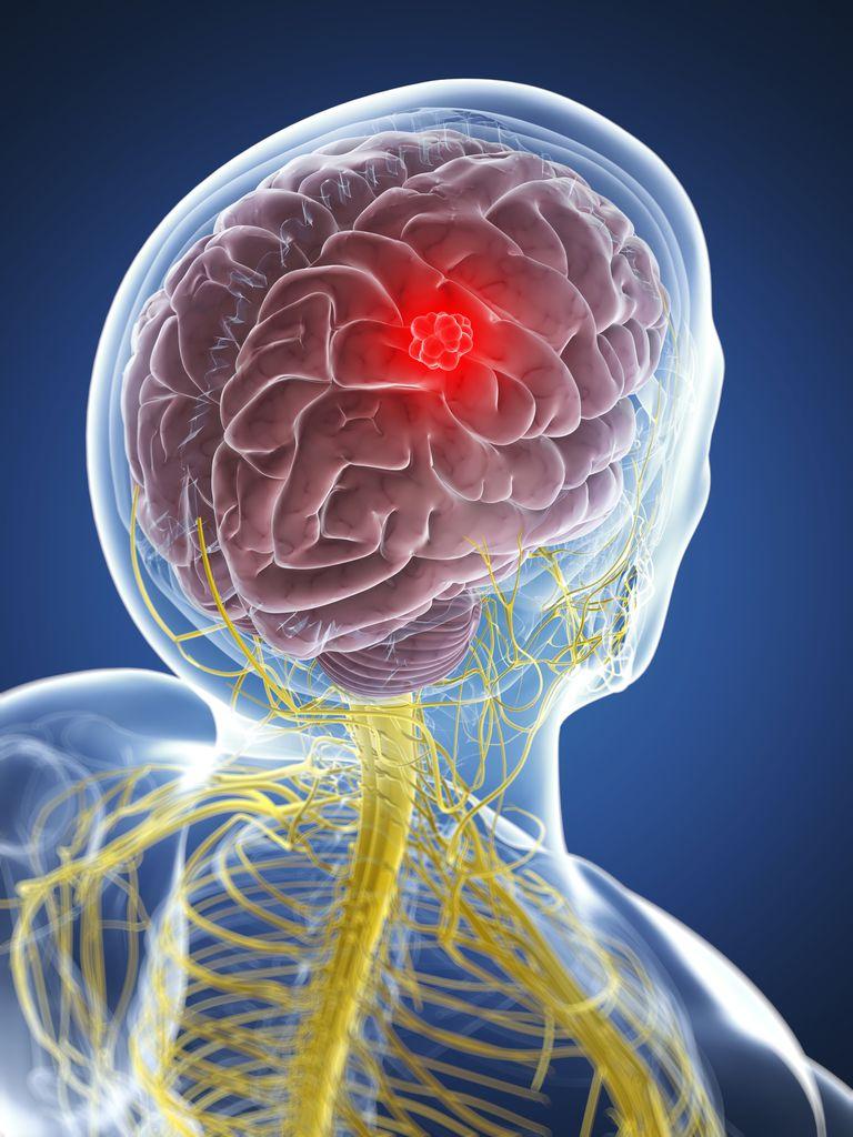 как избавиться от головной боли таблетки