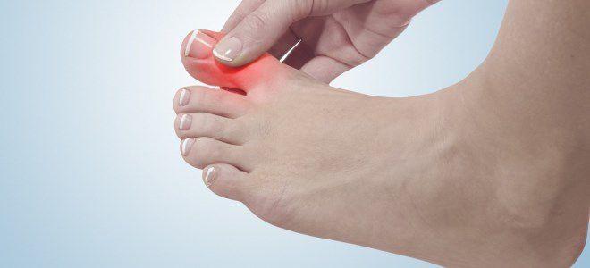Болит ноготь на ноге сустав thumbnail