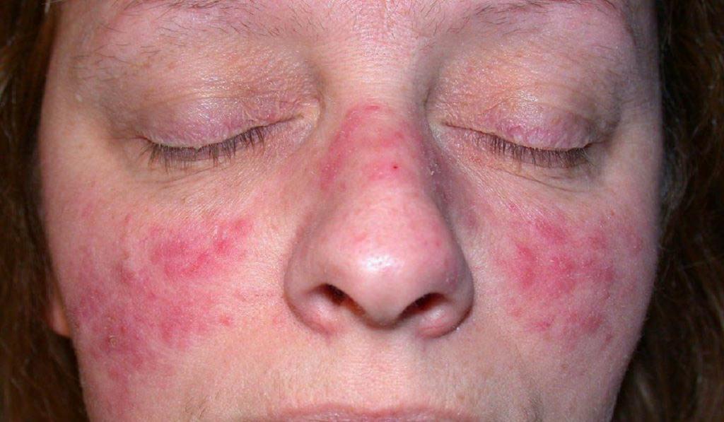 покраснение кожи лица вокруг носа