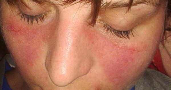 покраснение вокруг носа