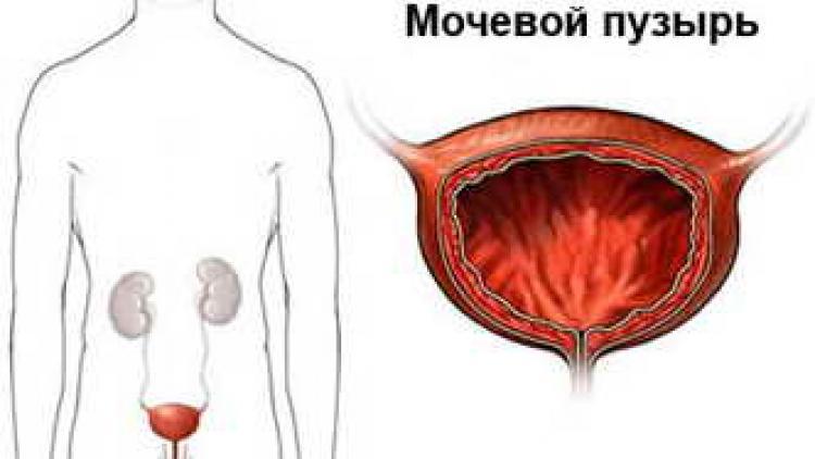 опухоль мочевого пузыря у мужчин