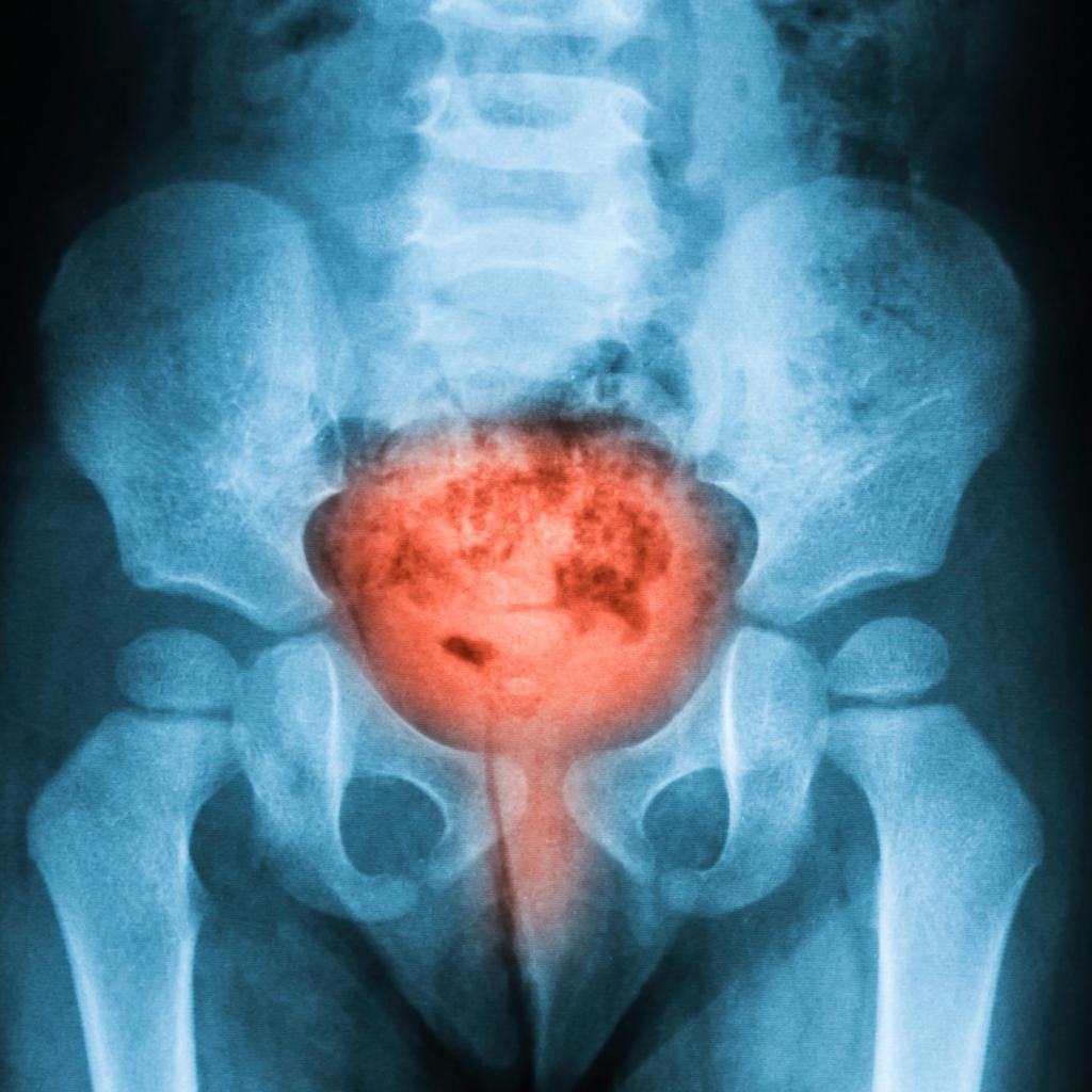 опухоль мочевого пузыря у женщин симптомы