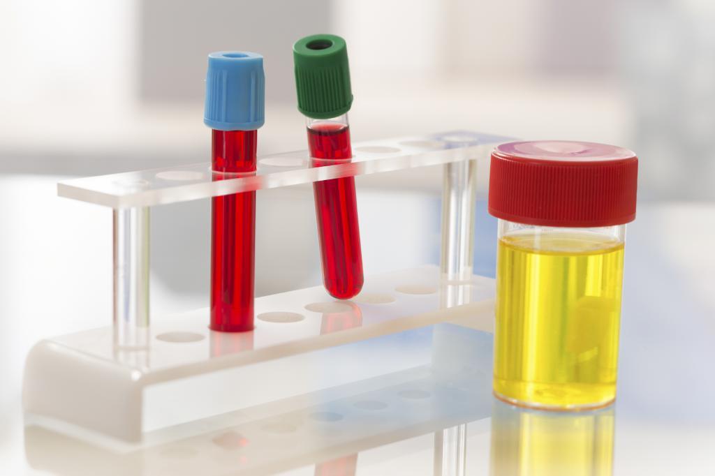 сколько делается анализ крови
