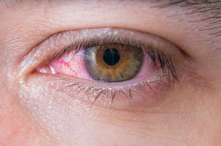 мазь для глаз тетрациклин