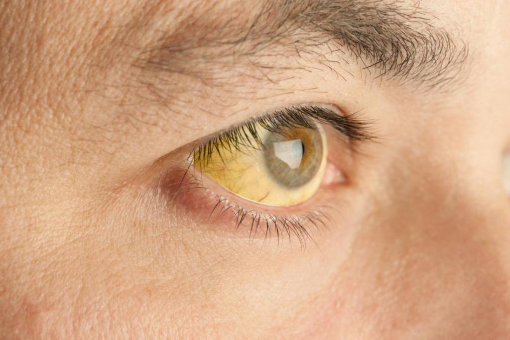 синдром Жильбера, желтуха