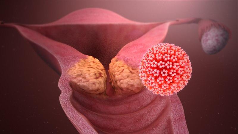Фото симптомов вируса папилломы человека у женщин