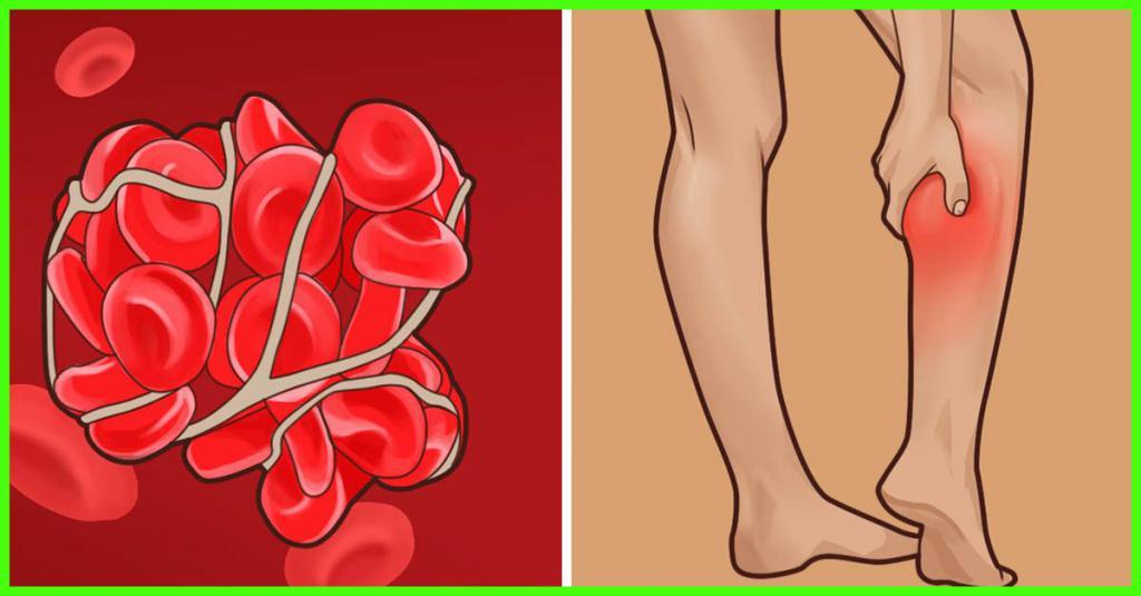 как правильно лечить трофическую язву на ноге