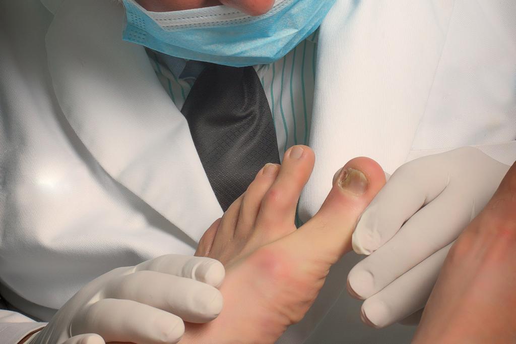 вросший ноготь на большом пальце операция
