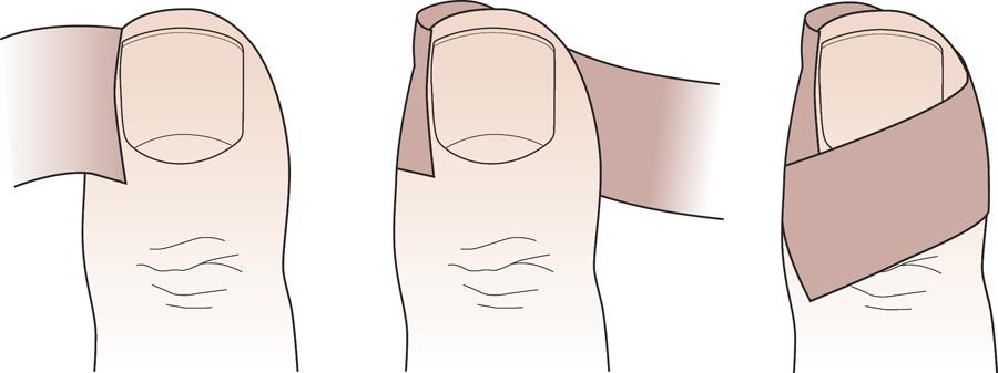 операция лазером вросшего ногтя