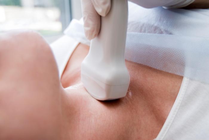 зоб щитовидной железы 2 степени