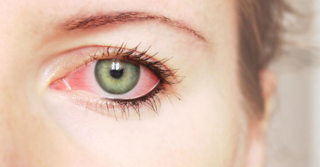 визин глазные капли инструкция по применению