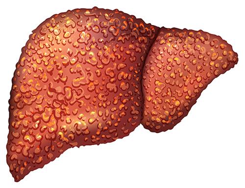 Причины развития маточного кровотечения