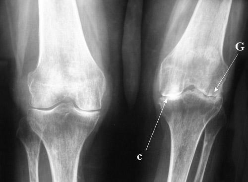 Клиническая картина септического артрита