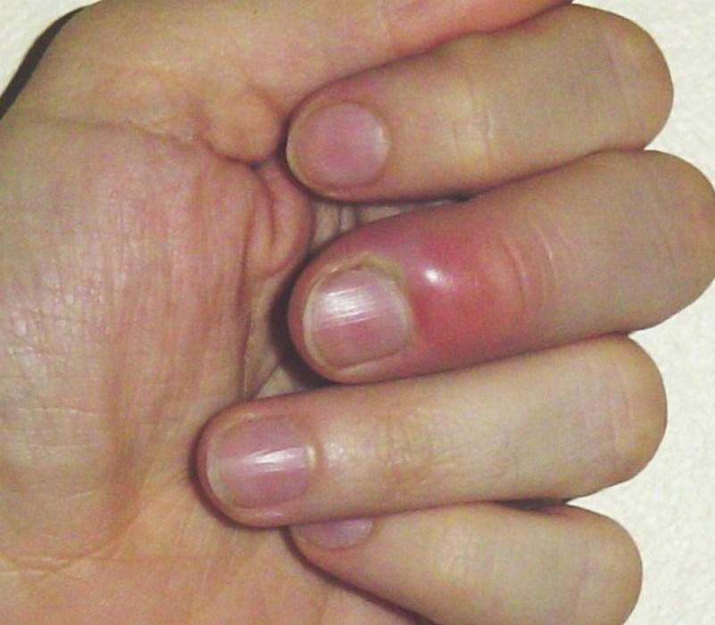 Внешние признаки септического артрита