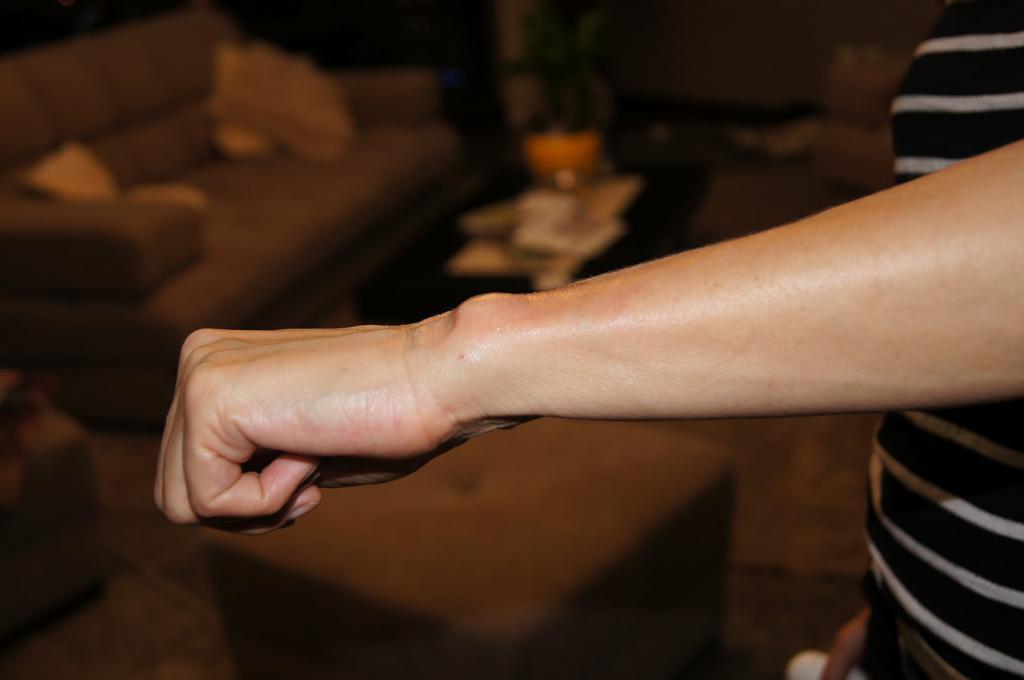 Болит могильная кость на ноге thumbnail