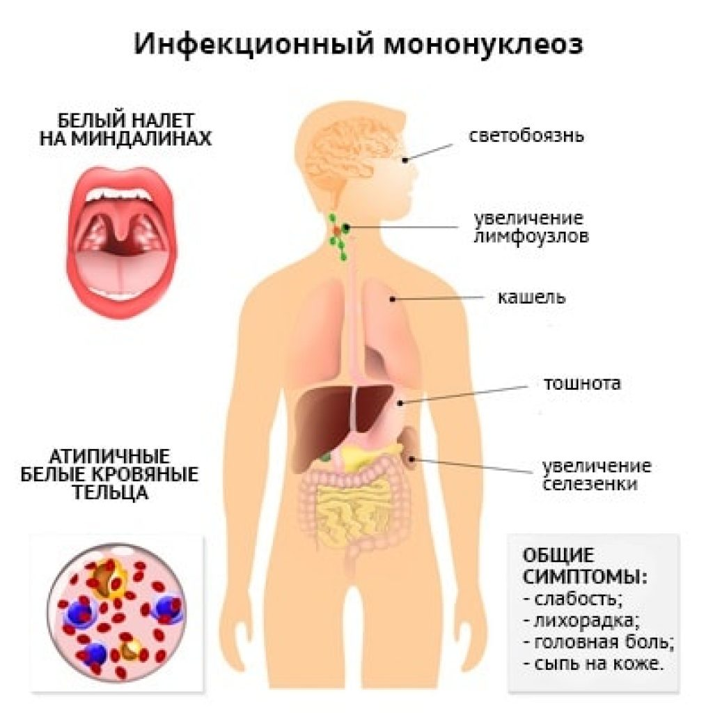 описание мононуклеоза