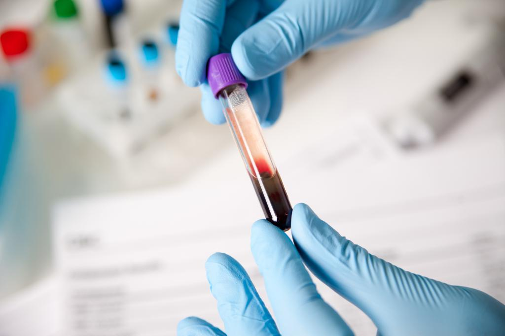 анализ крови на пса у мужчин