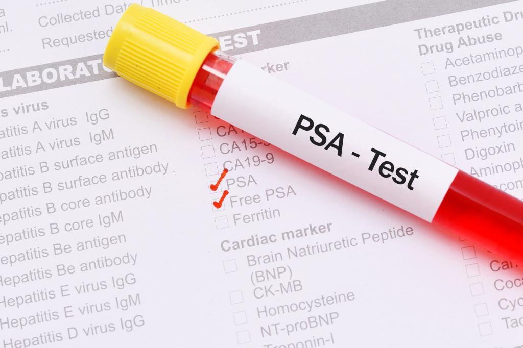 Анализ крови на свободный ПСА