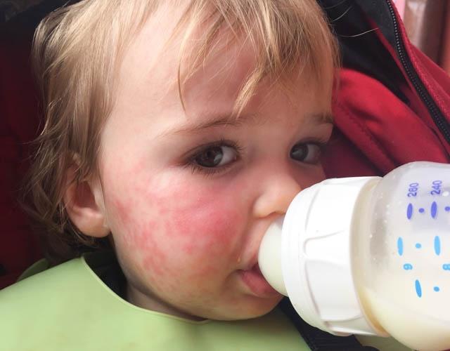 Аллергия на смесь для кормления