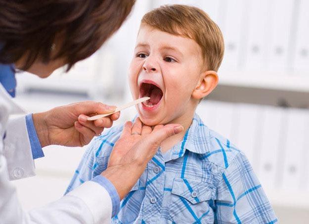 У ребенка 4 года болит горло без температуры thumbnail