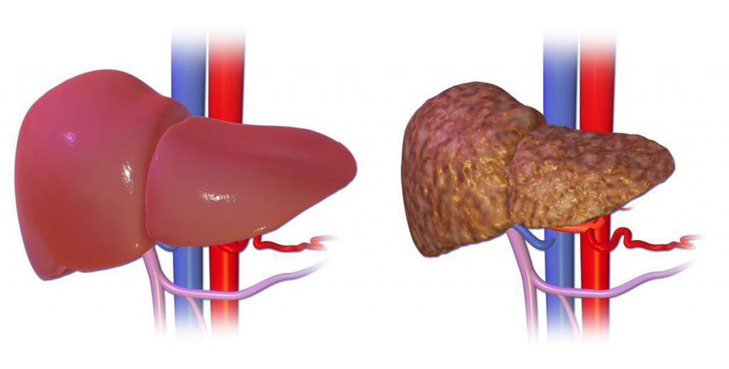здоровая печень и орган с циррозом