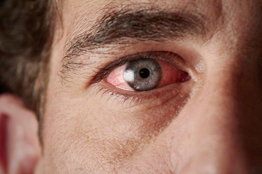 глаза покраснели и болит веко