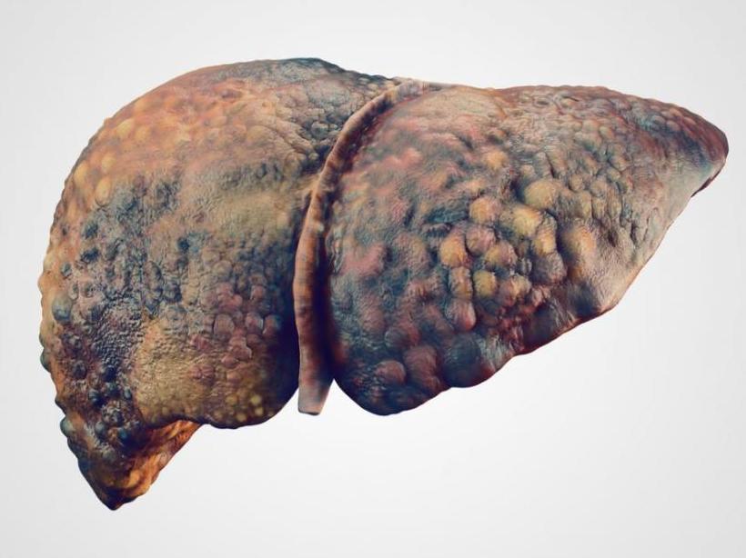 таблетки от цирроза
