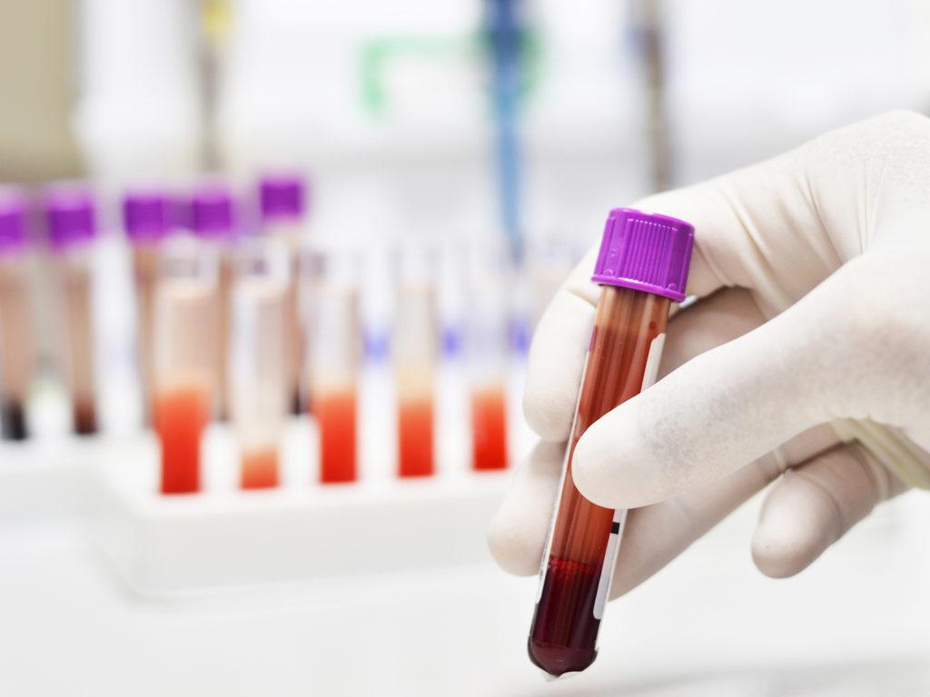 анализ крови в руке