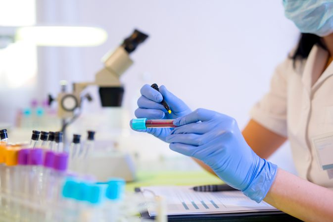 анализы на билирубин