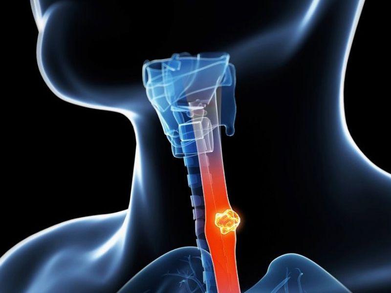 опухоль пищевода