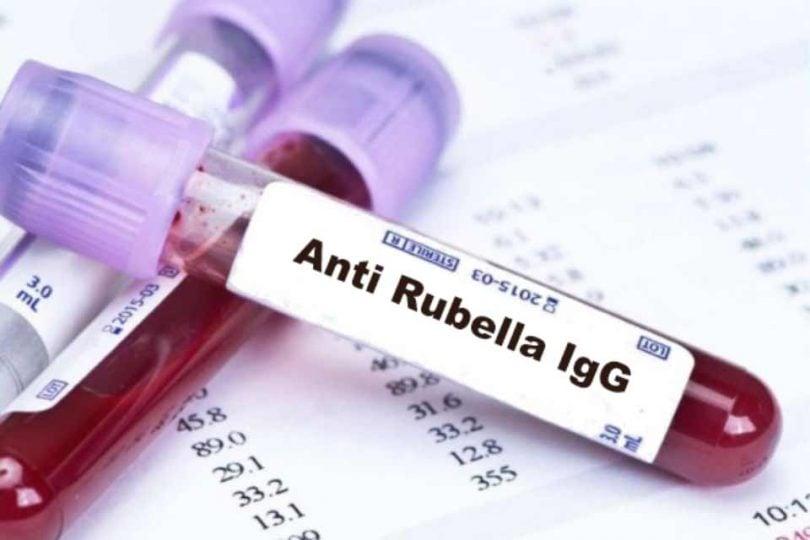 Анализ на иммунноглобулины G и M
