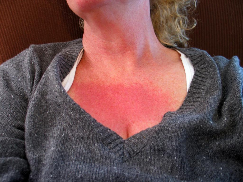 Покраснение кожи после применения горчичников