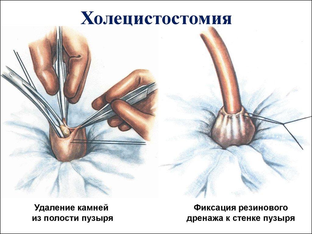 проведение холецистостомия