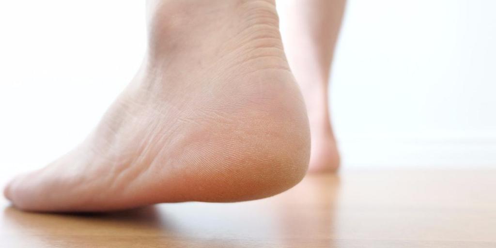 Болит пятка отдает на всю ногу что делать thumbnail
